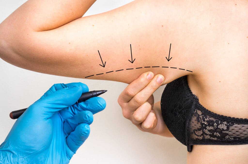 What to Know About Upper Arm Liposuction