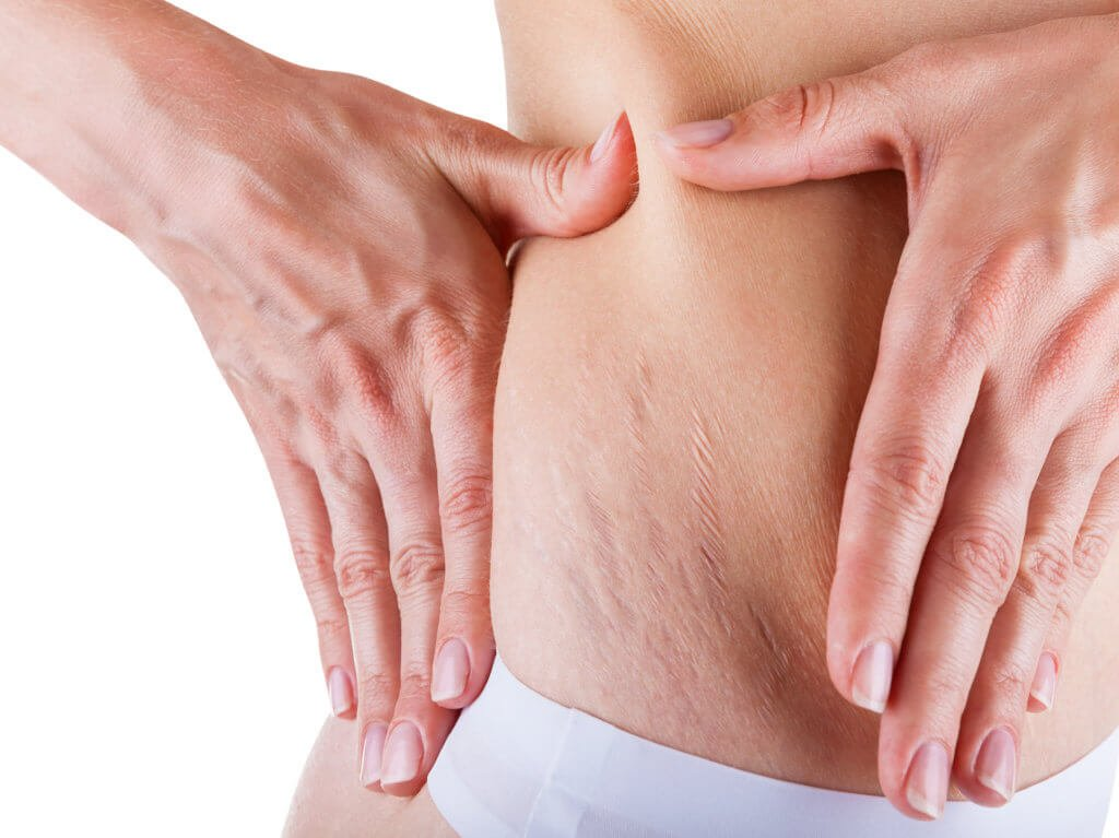 Liposuction Recovery Tips: How to Prevent Scars